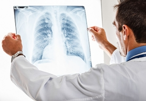 Lung cancer treatment in Israel